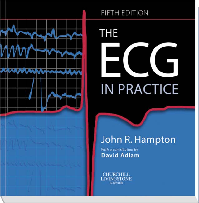 Ecg Made Easy 7Th Free Download